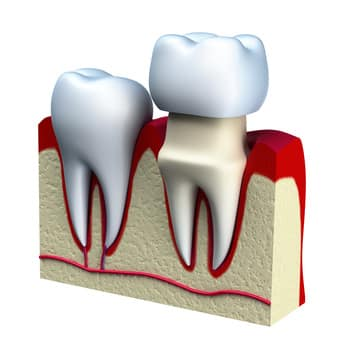 dental-crown-westminster-carroll-county-md
