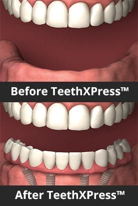 Mouth shown before and after TeethXpress implants